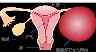 もの おり 卵巣 症状 嚢腫